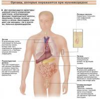 Для муковисцидоза характерен широкий спектр клинических симптомов