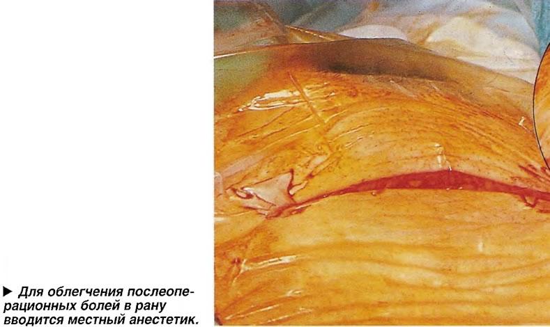 Для облегчения послеоперационных болей в рану вводится местный анестетик
