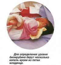 Для определения уровня билирубина берут несколько капель крови из пятки младенца
