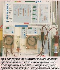 Для поддержания биохимического состава крови больным с почечной недостаточностью требуется диализ