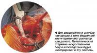 Для расширения и углубления канала в теле бедренной кости применяют распатор или долото
