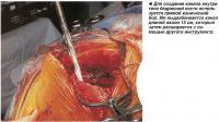 Для создания канала внутри тела бедренной кости используется прямой конический бор