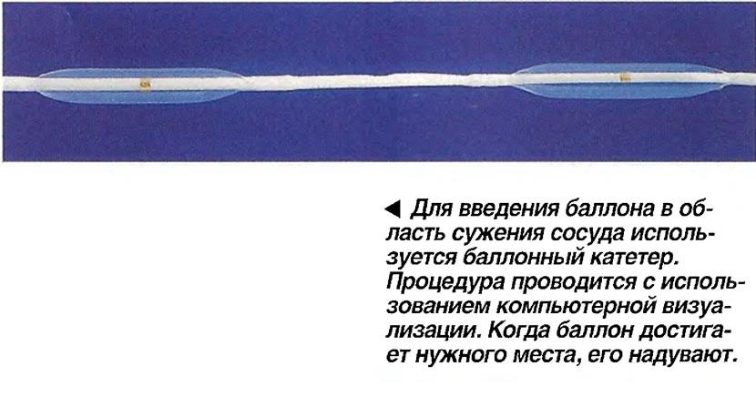 Для введения баллона в область сужения сосуда используется баллонный катетер