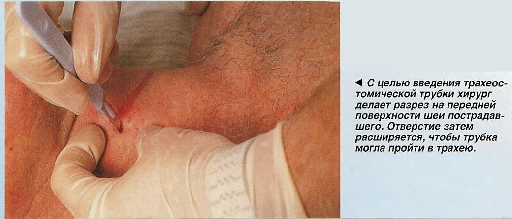 Для введения трахеостомической трубки хирург делает разрез на передней поверхности шеи пострадавшего