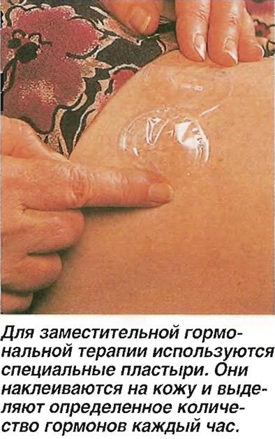 Для заместительной гормональной терапии используются специальные пластыри
