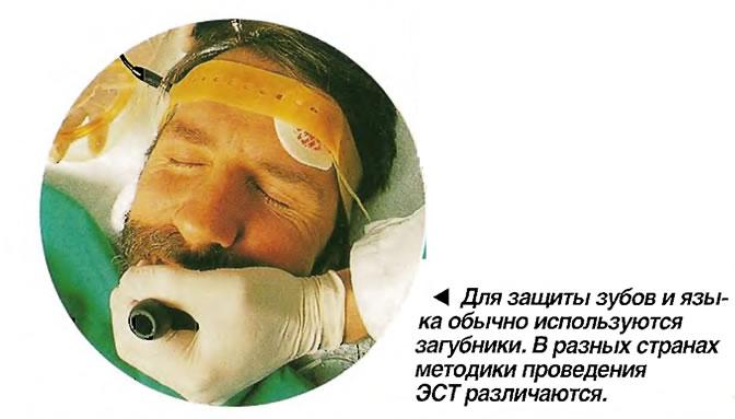 Для защиты зубов и языка обычно используются загубники