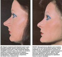 До и после пластики носа