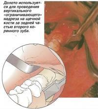 Долото используется для вертикального надреза