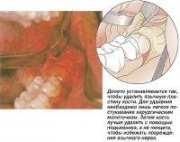Долото устанавливается так, чтобы удалить язычную пластину кости