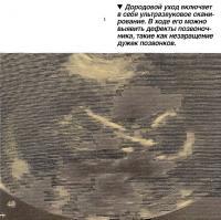 Дородовой уход включает в себя ультразвуковое сканирование