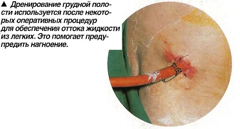 Дренирование грудной полости используется после некоторых оперативных процедур