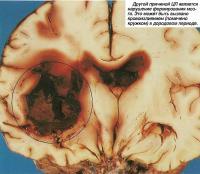 Другой причиной ЦП является нарушение формирования мозга