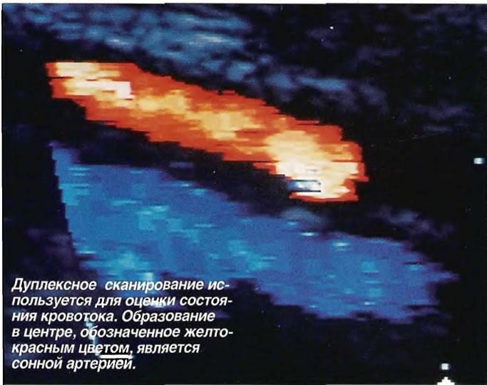 Дуплексное сканирование используется для оценки состояния кровотока