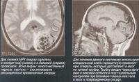 Два снимка МРТ вверху сделаны в поперечной и в боковой проекциях