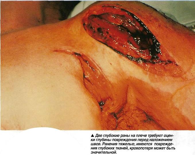 Две глубокие раны на плече требуют оценки глубины повреждения перед наложением швов