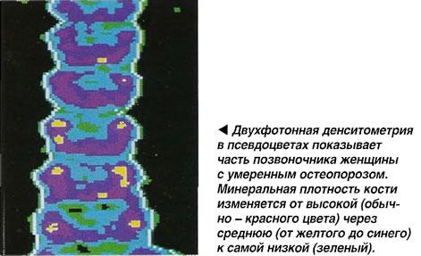 Двухфотонная денситометрия в псевдоцветах