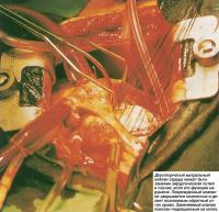 Двустворчатый митральный клапан сердца. Заменяемый клапан показан подвешенным на нитях