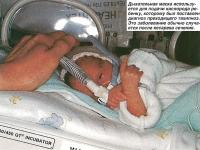 Дыхательная маска используется для подачи кислорода ребенку