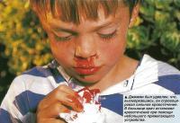 Джимми был удивлен, что высморкавшись, он спровоцировал сильное кровотечение