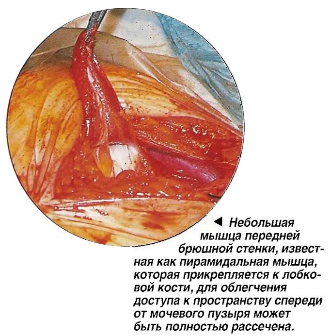 ебольшая мышца передней брюшной стенки может быть полностью рассечена