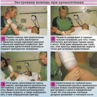 Экстренная помощь при кровотечении