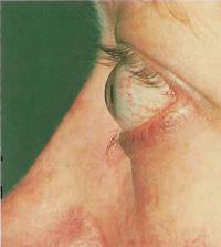 Экзофтальм при болезни Гоейвса. Возникает из-за отека тканей внутри глазной орбиты