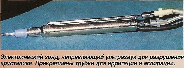 Электрический зонд, направляющий ультразвук для разрушения хрусталика