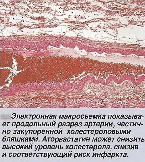 Электронная макросъемка показывает продольный разрез артерии