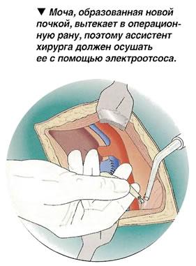 Электроотсос