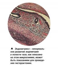Эндометриоз - ненормальное развитие эндометрия в полости таза