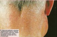 Эпидемический паротит может вызвать симптомы, подобные ревматическим
