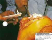 Эпидуральная анестезия является формой региональной анестезии