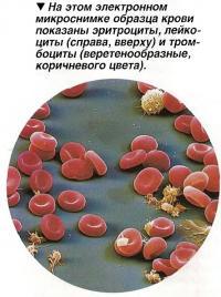 Эритроциты, лейкоциты  и тромбоциты