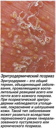 Эритродермический псориаз