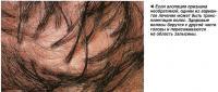 Если алопеция признана необратимой, одним из вариантов лечения может быть трансплантация волос