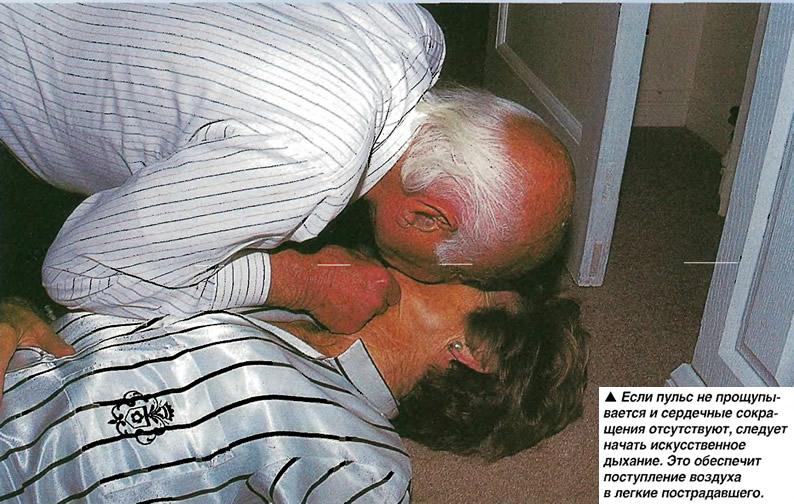 Если пульс не прощупывается следует начать искусственное дыхание