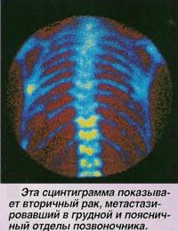 Эта сцинтиграмма показывает вторичный рак