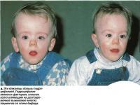 Эти близнецы больны гидроцефалией