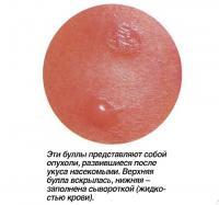 Эти буллы представляют собой опухоли, развившиеся после укуса насекомыми