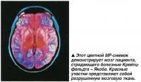 Этот цветной МР-снимок демонстрирует мозг пациента, страдающего болезнью Крейтцфельдта - Якоба