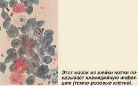 Этот мазок из шейки матки показывает хламидийную инфекцию