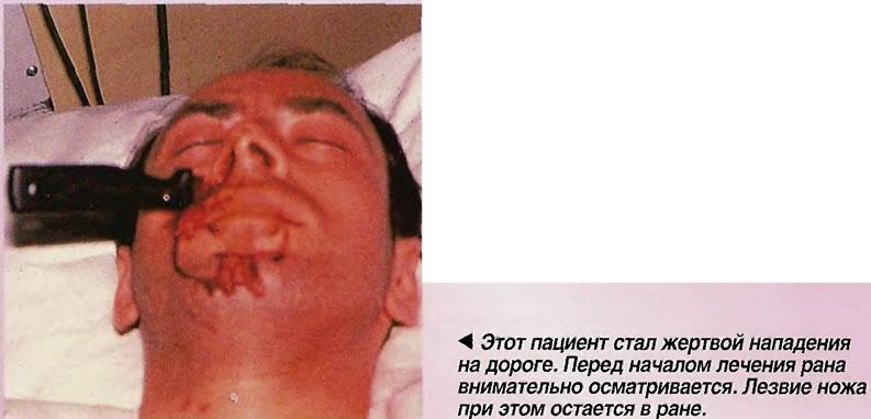 Этот пациент стал жертвой нападения на дороге
