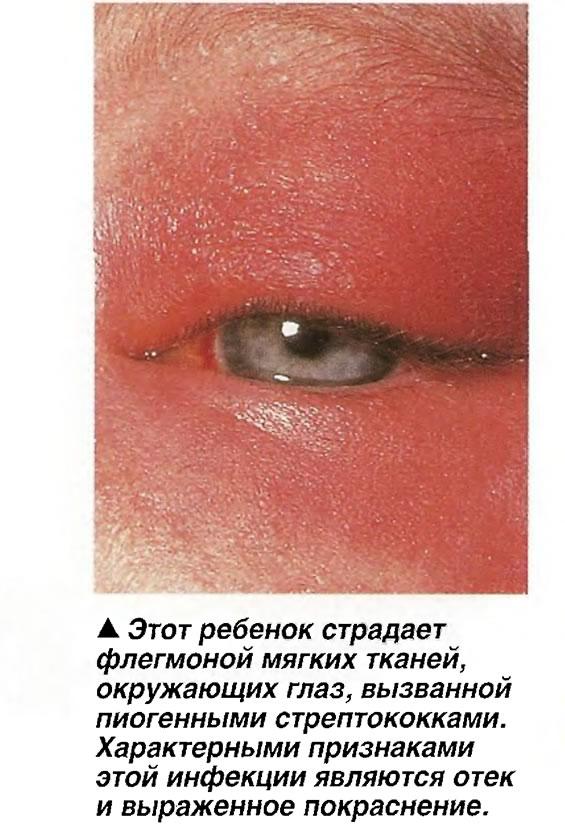 Этот ребенок страдает флегмоной мягких тканей, окружающих глаз