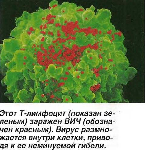 Этот Т-лимфоцит (показан зеленым) заражен ВИЧ (обозначен красным)