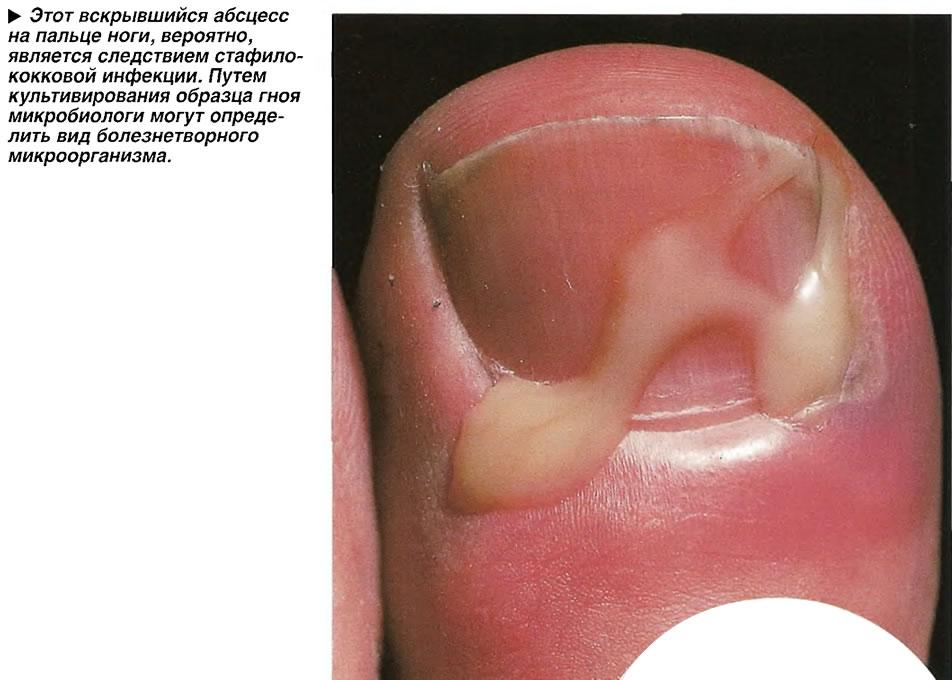 Этот вскрывшийся абсцесс на пальце ноги, вероятно, является следствием стафилококковой инфекции.
