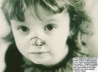 Эту маленькую девочку собака укусила за нос