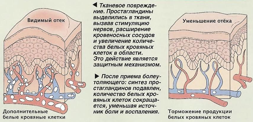 Фармакологическое действие ацетилсалициловой кислоты