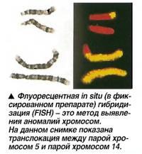 Флуоресцентная in situ гибридизация (FISH)