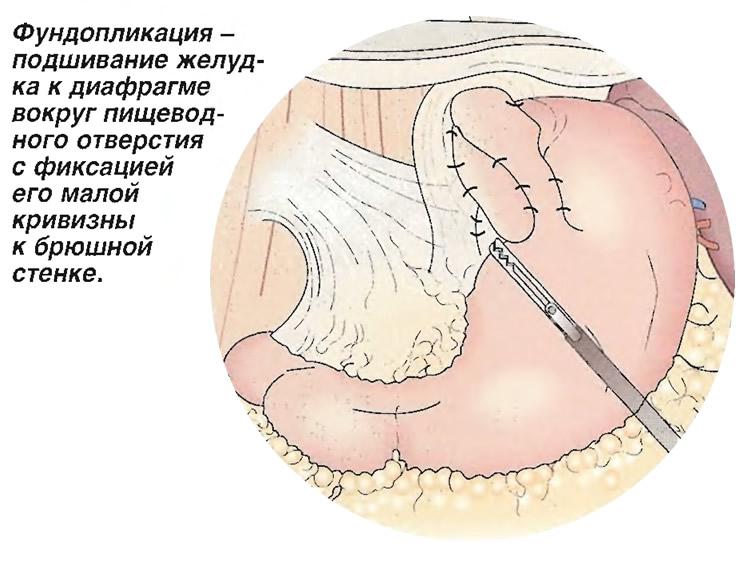 Фундопликация - подшивание желудка к диафрагме вокруг пищеводного отверстия