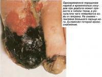 Гангрена большого пальца ноги, вызванная потерей кровоснабжения